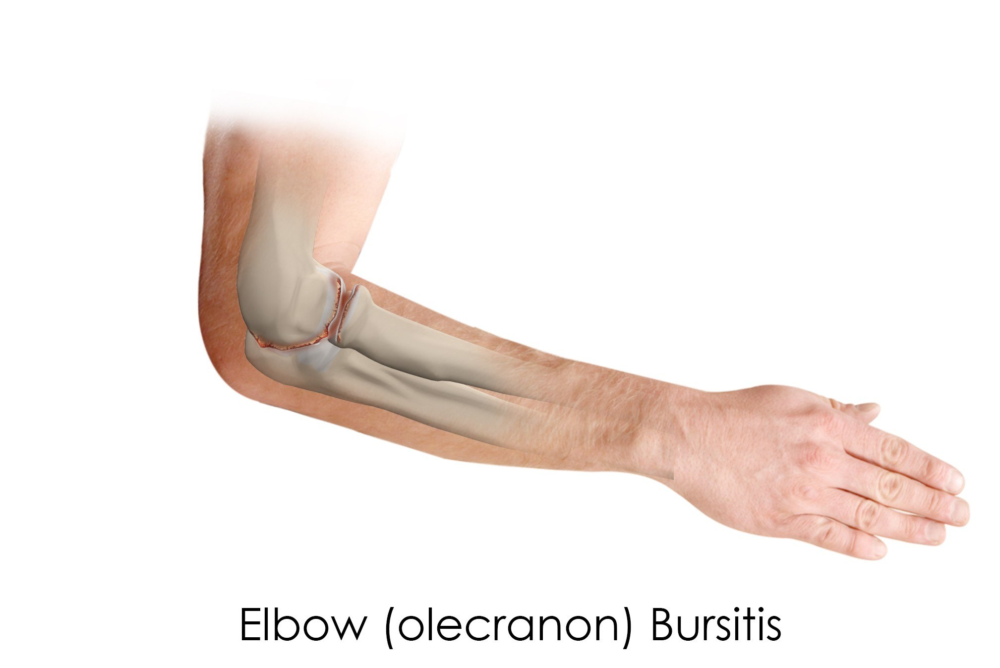 Osteoarthritis Of The Elbow